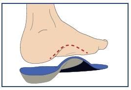 custom shoe insole