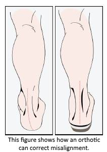 Figure-showing-how-orthotics-work